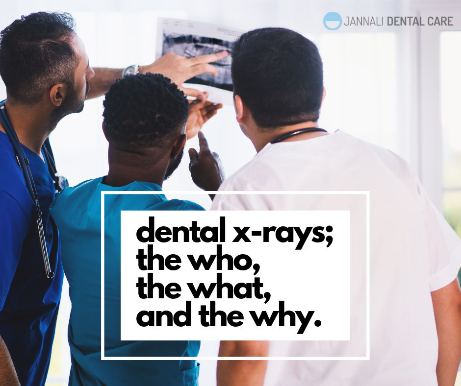 dental x-ray at Jannali Dental Care