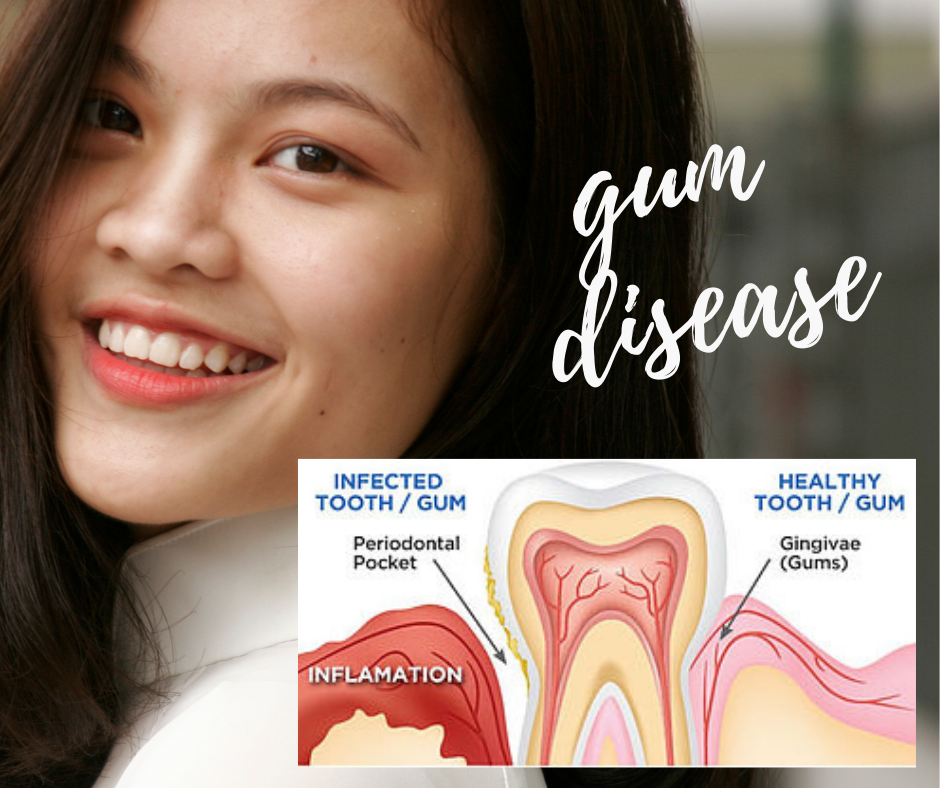 treating gum disease at Jannali Dental Care
